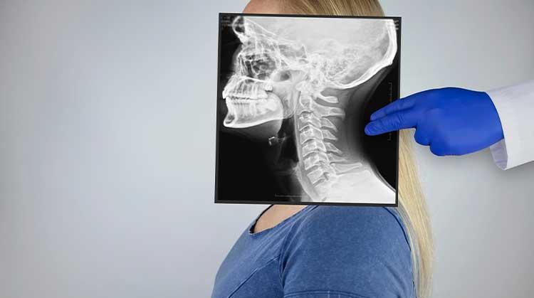yüz kırıkları ameliyatı nedir